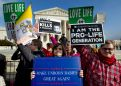 US abortion rate is at its lowest, but restrictive laws aren't the likely cause, study says